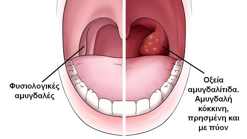Αμυγδαλίτιδα πυώδη