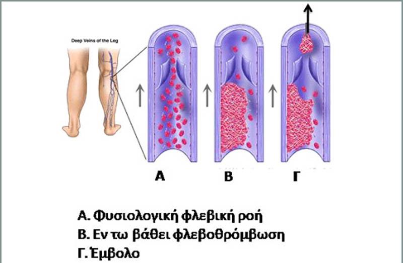 Θρομβοφλεβίτιδα