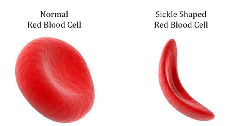 Δρεπανοκυτταρική θαλασσαιμία