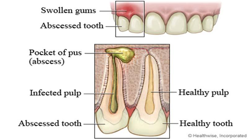 Αποστήματα δοντιών