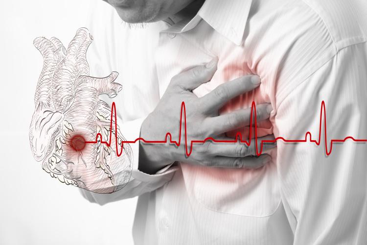 Χρυσοί κανόνες για να αποφύγεις την καρδιακή προσβολή