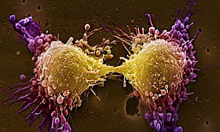 Ανακάλυψη πρωτεΐνης υπέρ της ανοσία στον καρκίνο