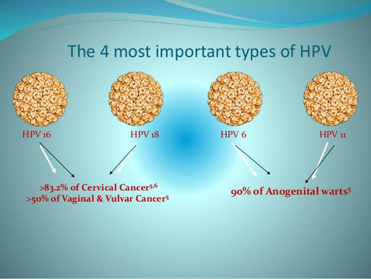 Ο,τι πρέπει να ξέρετε για κονδυλώματα και HPV.