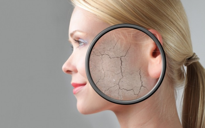Η βιταμίνη που βελτιώνει το ξηρό δέρμα και πού θα την βρείτε
