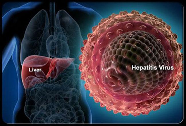 Πιο θανατηφόρος η ιογενής ηπατίτιδα από ελονοσία, φυματίωση και AIDS