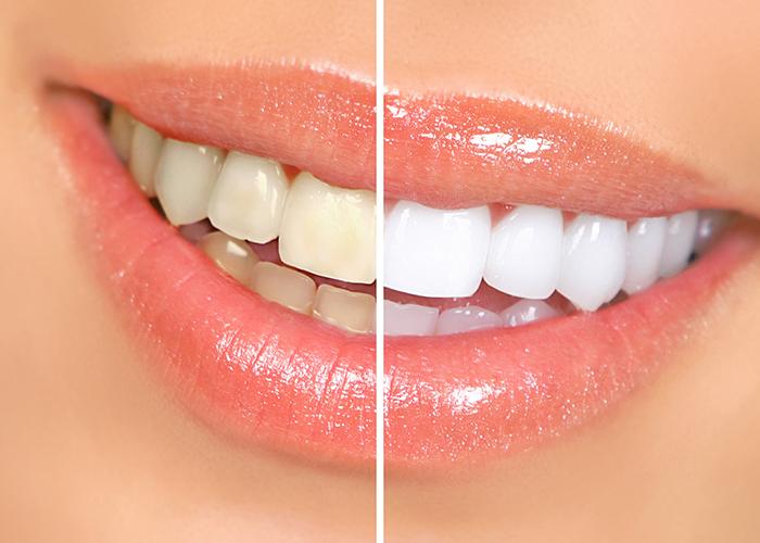 Σπιτική συνταγή για λευκά δόντια