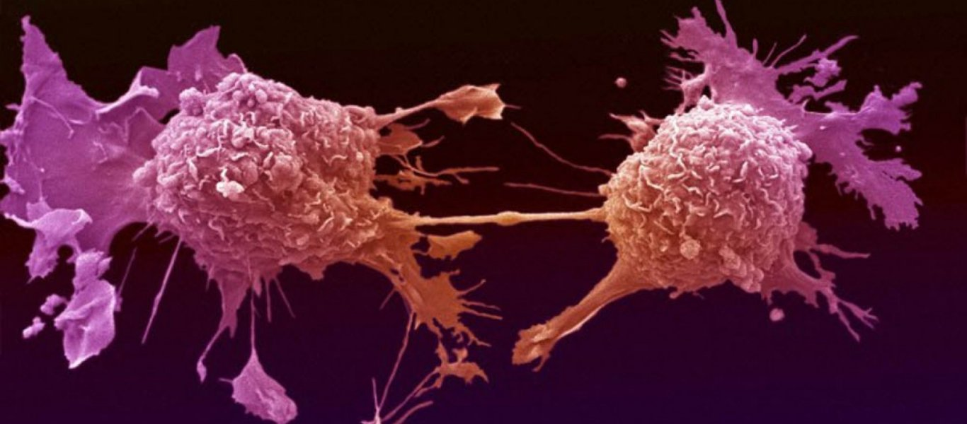 Έλληνες ερευνητές στην Κρήτη ίσως να βρήκαν θεραπεία για τα καρκινικά κύτταρα