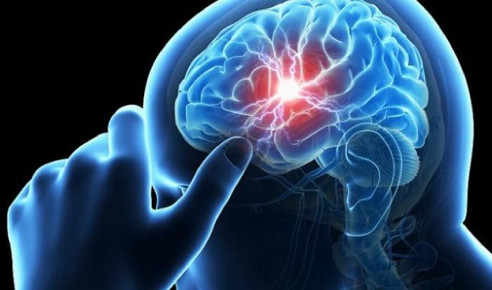 Αυτά είναι τα συμπτώματα που θα έχετε πριν απο κάποιο εφκεφαλικό επισόδειο